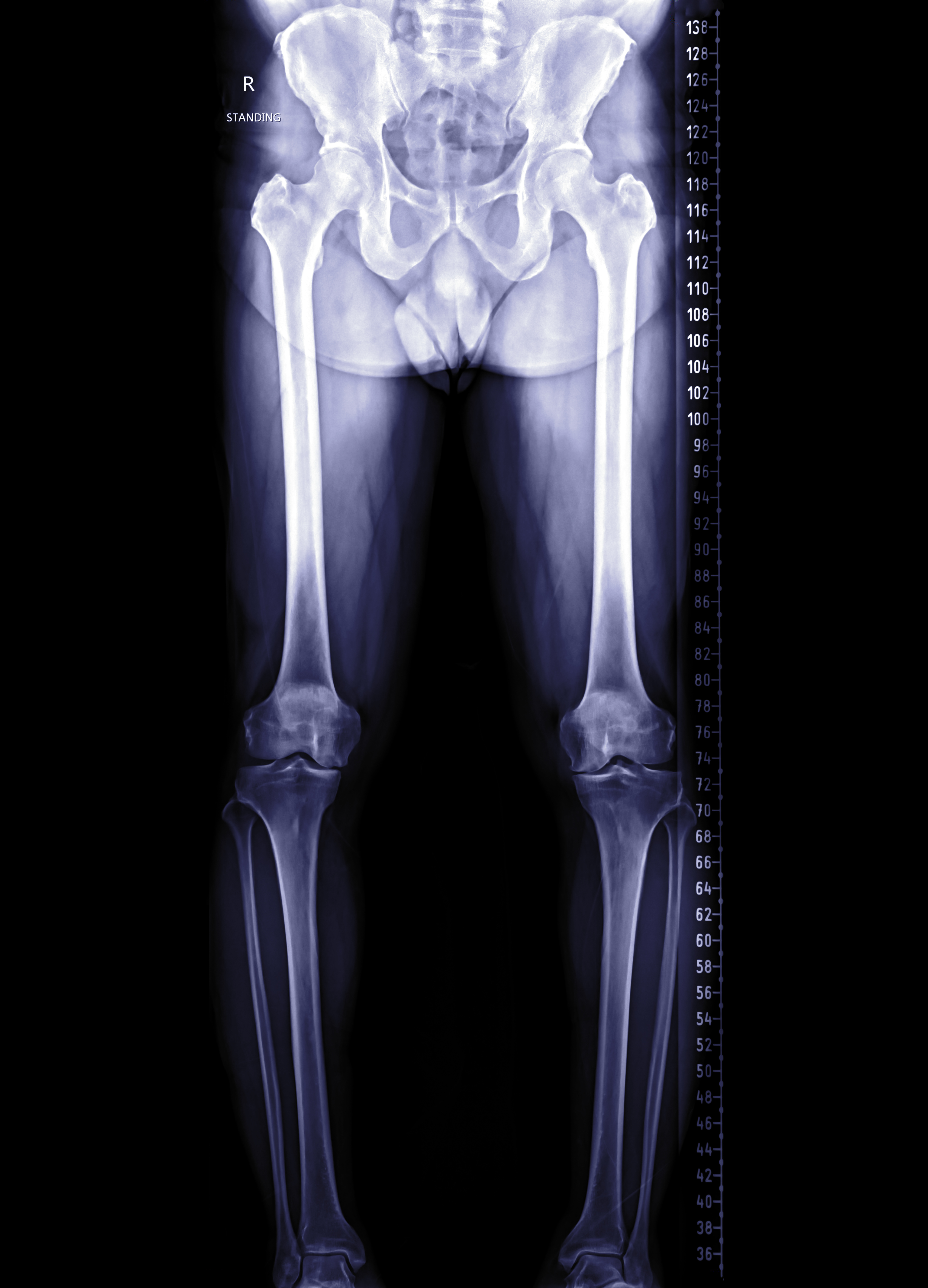 scanogram of lower limb or X-ray image of total lower extremity . Medical background concept.