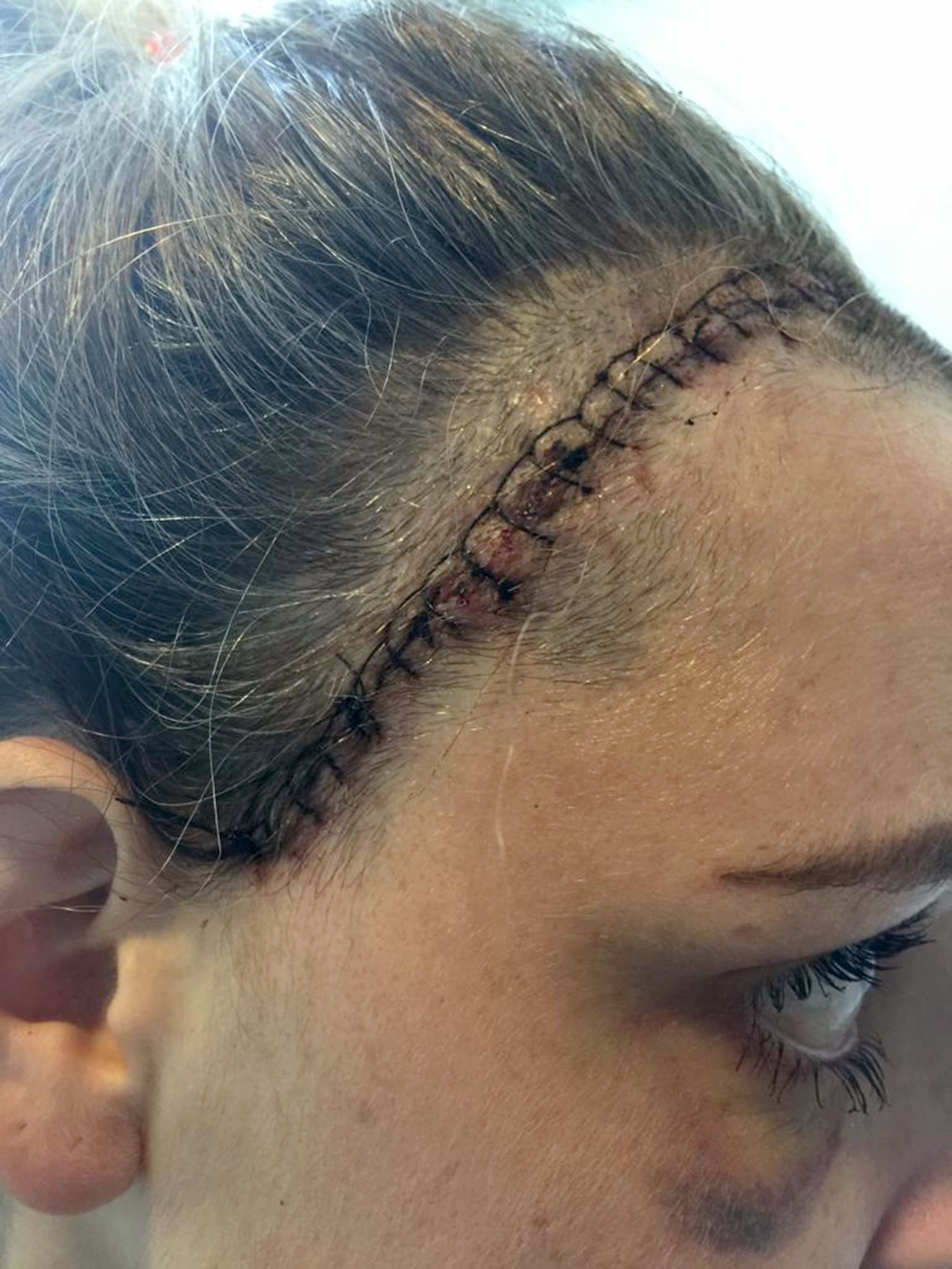 Emily had the stitches after the surgery [Photo: Caters]