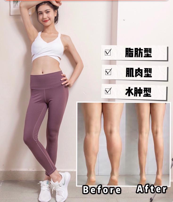 平時記得不要翹二郎腿,走路時多用臀部出力,避免小腿使力過度。