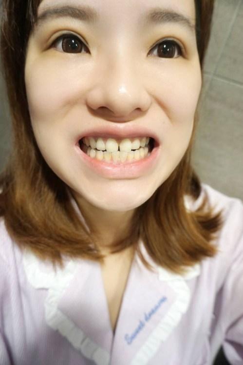 讓牙齒一整天好清新-舒酸定專業抗敏護齦牙膏/舒酸定抗敏漱口水/舒酸定超軟毛舒敏牙刷 #Yahoo1212