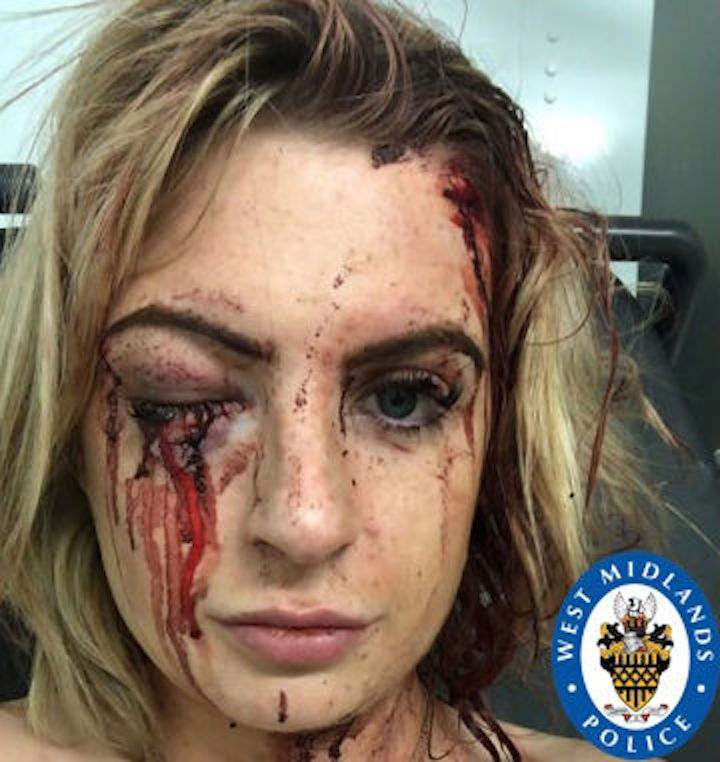 Blythe Mason-Boyle was left with permanent sight damage following the hammer attack (Picture: PA)