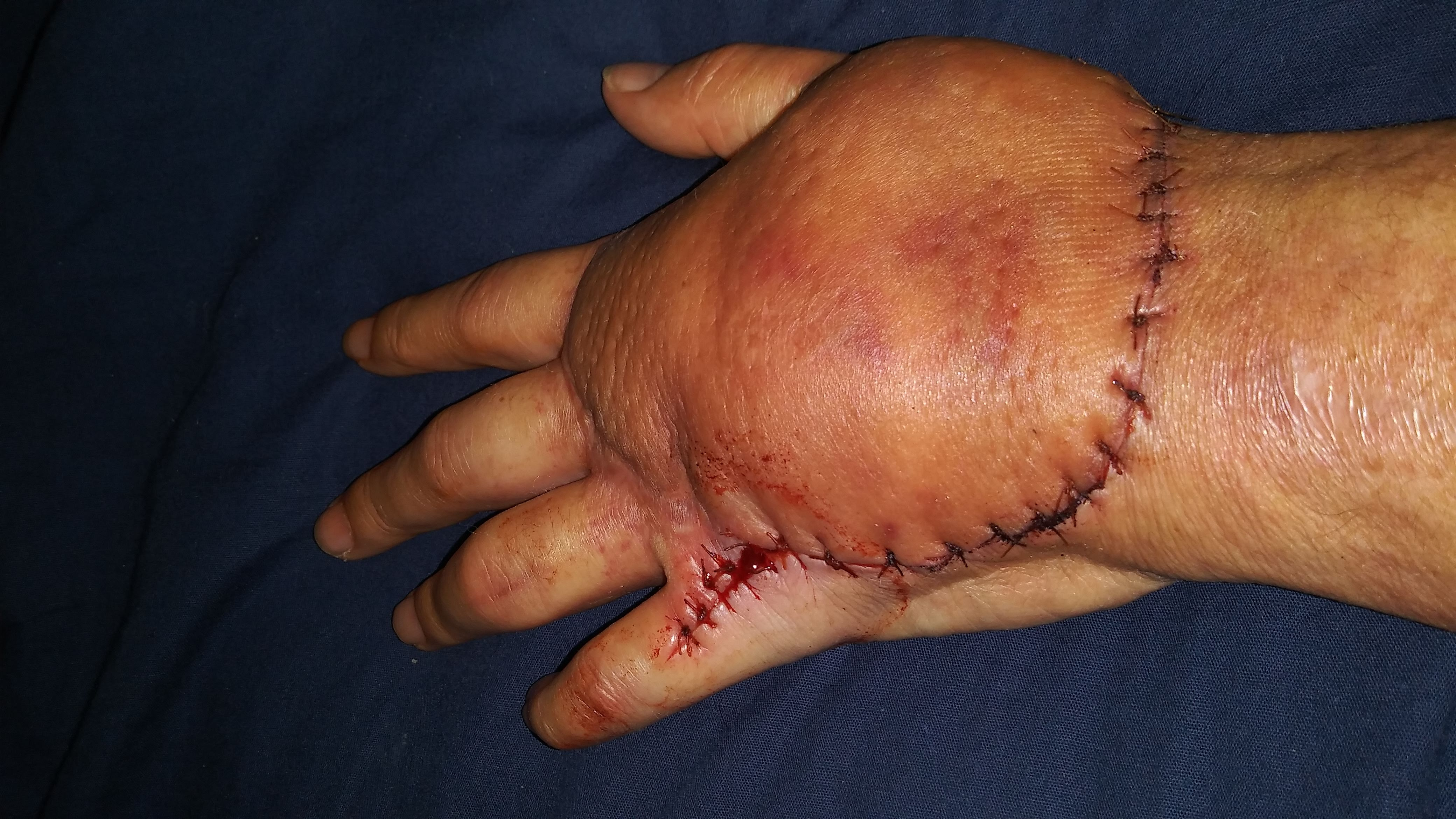 Heather Harbottle's swollen hand with stitches after surgery.