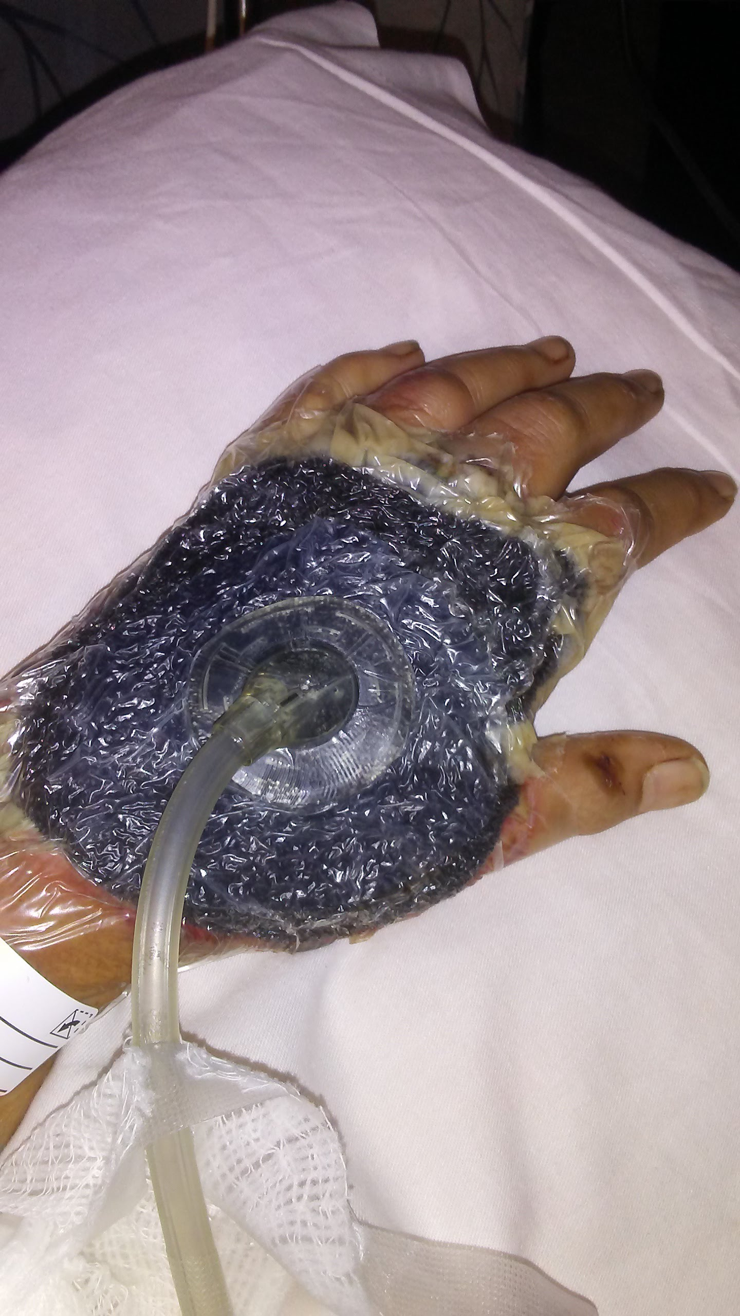 A vac seal covering the 49-year-old Hawaii woman's staph infection on her hand.