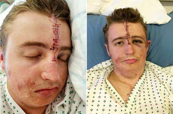 Frank Richardson, 21, was waiting for a train when the heavy wrought iron security gates flung open and smashed him in the face. (SWNS)