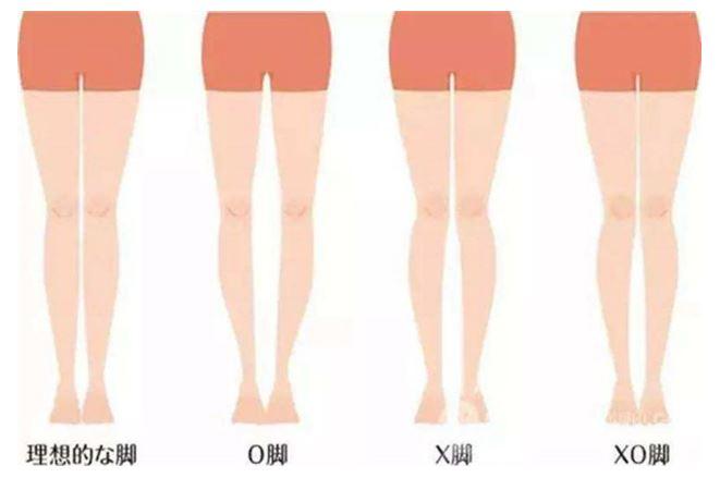 該如何判斷自己的腿型?在平坦硬質地面立正站好,不要刻意併攏讓腳處於完全放鬆狀態。