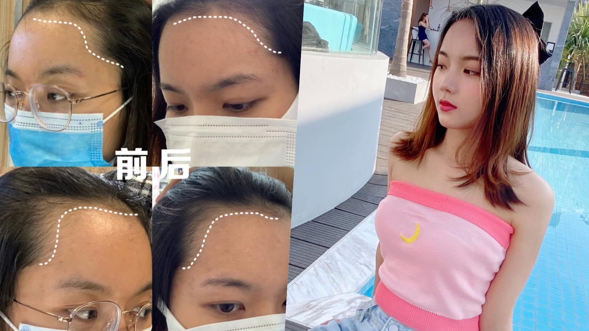 網友梨梨醬實測喝了一個月,前額髮際線改善超多!(圖片來源:梨梨醬小紅書)