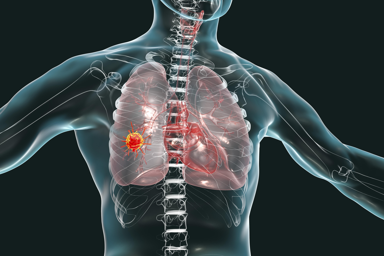 ▲除了新冠肺炎之外,日常中肺部還有5大隱形殺手。【圖/pixabay】