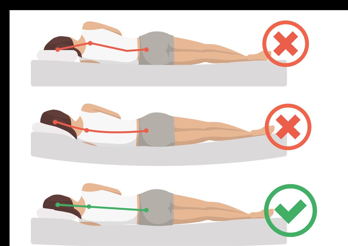 ▲床墊過軟太硬,脊椎容易呈現U、S型壓迫,容易愈睡愈累。許嘉麟醫師提供